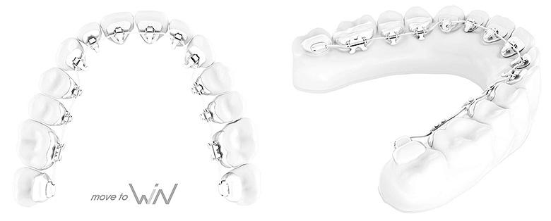Win Linguale Zahnspange - unsichtbar zu geraden Zähnen