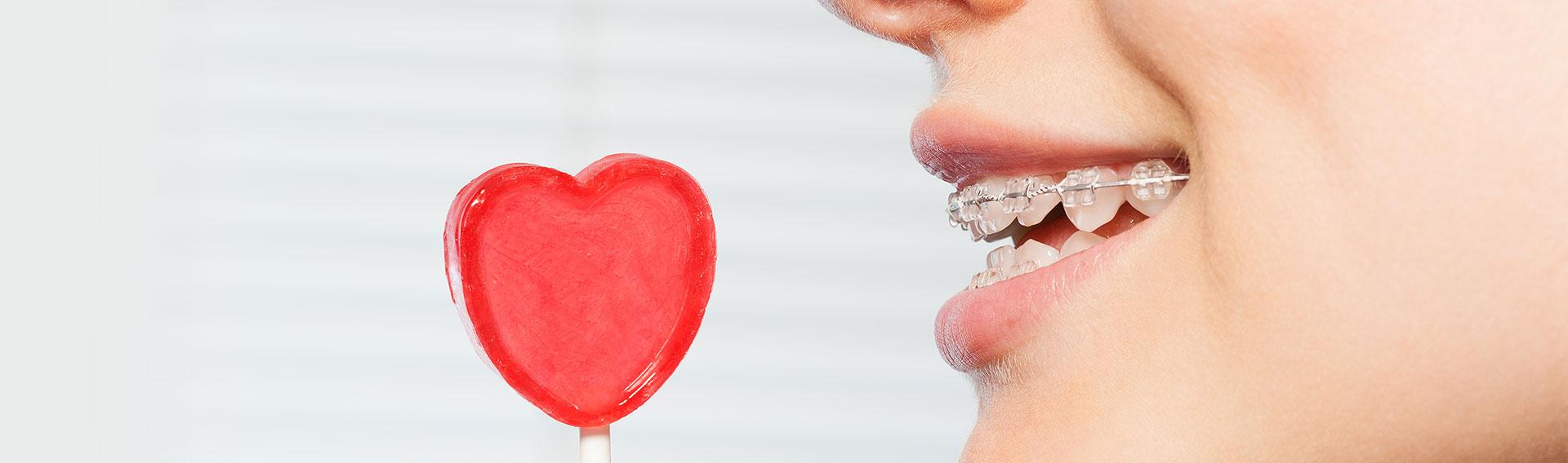 Ästhetische Keramik-Brackets als unfälligere Feste Zahnspangen bei Kindern und Jugendlichen Patienten